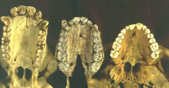 Arcada dentária dos Australopithecus