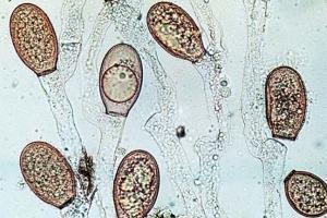 Filo Chytridiomycota