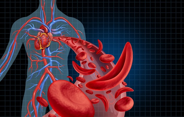 Células sanguíneas em formato de foice