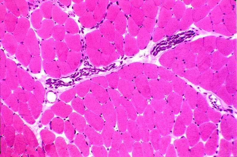 Tecido conjuntivo - Estruturação e principais células