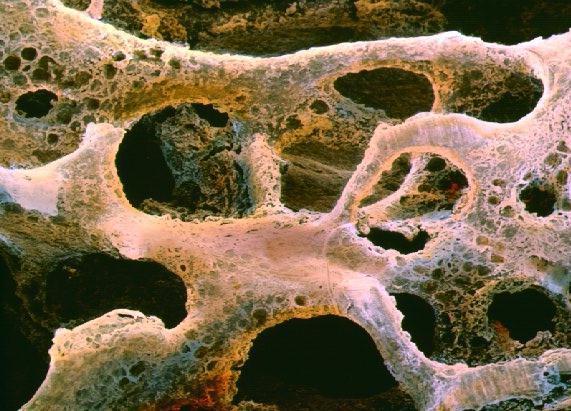 Tecido ósseo - Composição, divisão e classificação