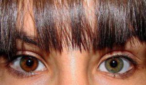 heterocromia-causas-tipos-e-ocorrencias