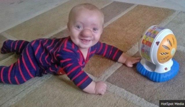 garoto-nasce-com-parte-do-cerebro-no-nariz
