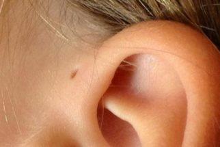 Pequeno furo extra na orelha: por que algumas pessoas têm isso?
