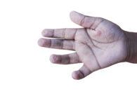 Por que a pele dos pés e das mãos fica enrugada em contato com água?
