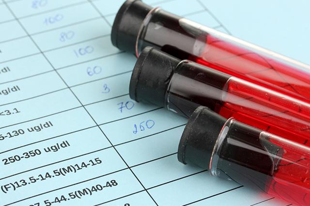 O coquetel para HIV é feito com certos remédios prescritos de acordo com o estágio da doença
