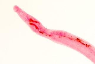 Esquistossomose: sintomas e tratamento