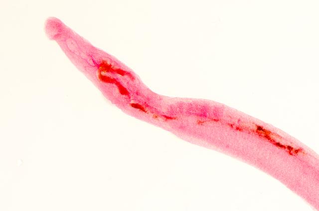 Verme Schistosoma mansoni
