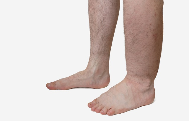 Uma perna inchada