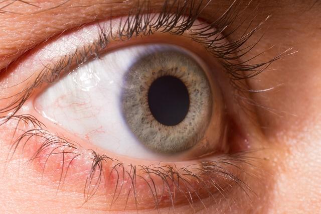 Pupilas dilatas